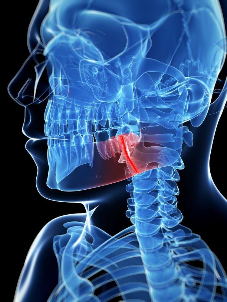 seattle jaw surgery 3d xray